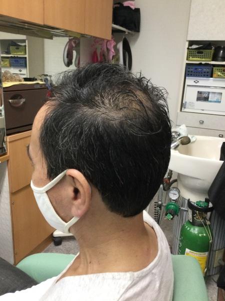 カット 集中育毛ケア 40代男性